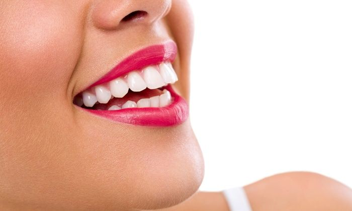 Home Remedies For Teeth Whitening Naturally - http://emergencydentalcaretips.com/home-remedies-for-teeth-whitening-naturally/ Learn about home remedies to whiten teeth instantly how to whiten teeth naturally overnight how to whiten teeth at home in one day how to whiten teeth at home fast teeth whitening baking soda quick teeth whitening home remedies how to whiten teeth with banana how to make teeth white naturally from yellow