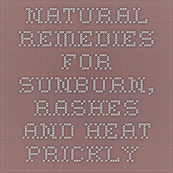 Natural Remedies For Sunburn, Rashes And Heat Prickly -