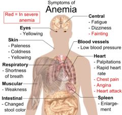 #Anemia is a symptom caused by a myriad of conditions including iron deficiency, vitamin B12 deficiency, vitamin C deficiency, Vitamin E deficiency, vitamin B6 deficiency, thyroid disorders and DIET. Since the most significant and common forms of anemia are related to #diet, it is this area that I will address.