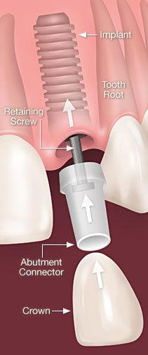 Dental Implants are the best replacement for a missing tooth!