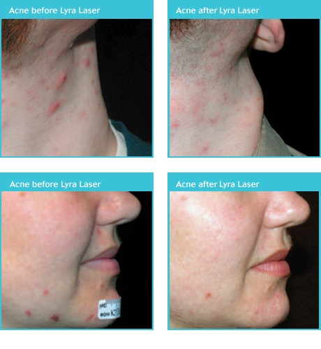 what can a dermatologist do for acne