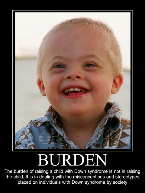 Down syndrome quote.  Down syndrome awareness.  Down syndrome baby, child with Down syndrome quote