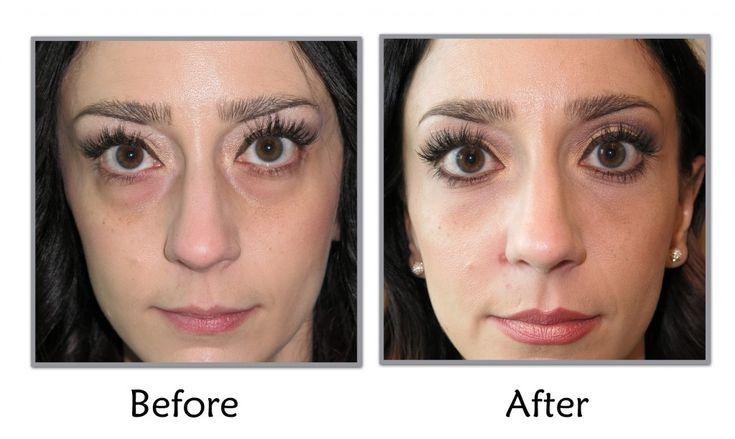 Tear Trouph Rejuvenation Under Eye Wrinkles Learn How