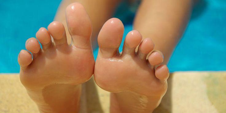 Faire partir une mycose aux pieds