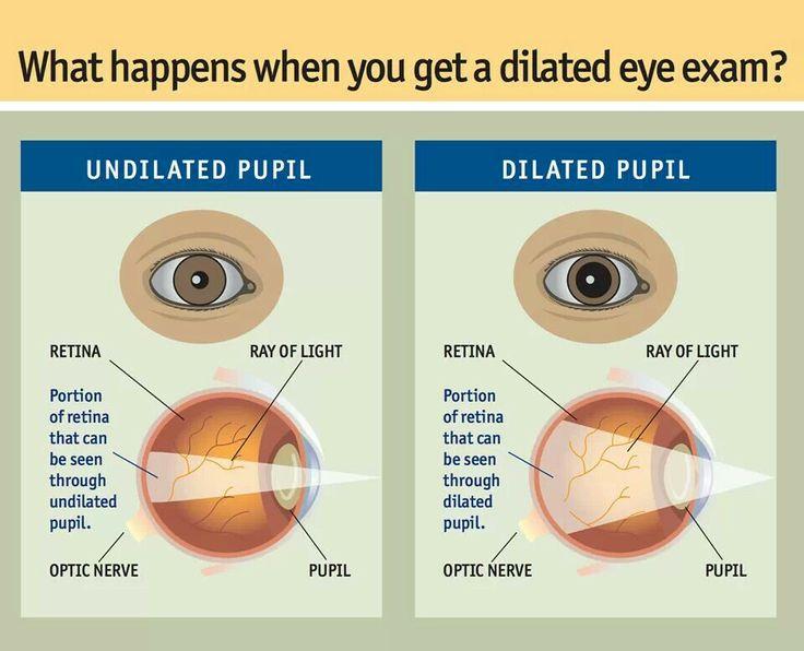 Undilated vs. Dilated pupil | Eye Infographics | PinterestDilated Pupils Drugs What Mm