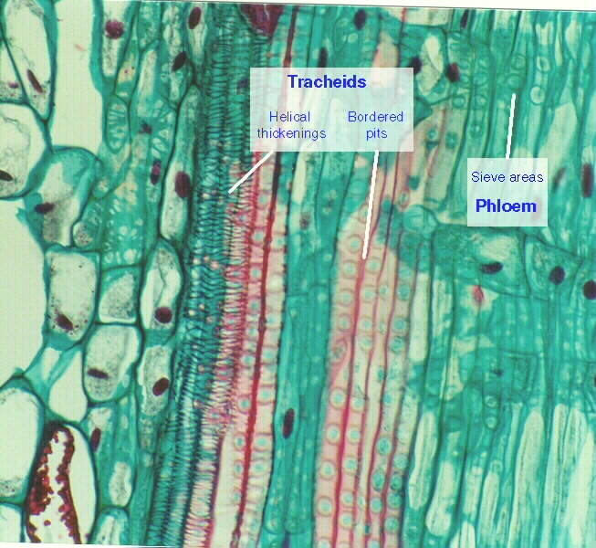 xylem and phloem cells of pine | Life science, Plant ... Xylem Tissue Cell