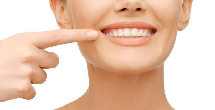 Los braces invisibles es la manera que se tiene para poder corregir la dentadura de manera invisible mediante aparatos dentales. Con Invisalign lo que se hace es utilizar una serie de alineadores removibles y transparentes para que de esta manera poco a poco se puedan enderezar los dientes, y sin alambres ni metales. Fuente: http://detodosobresalud.com/que-es-invisalign-o-braces-invisibles/