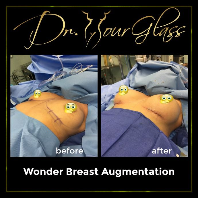 They say that when a woman decides to decide to undergo Wonder Breast Augmentation, it is more of a personal decision. Whatever the reason is, this method will increase or restore the size of your breasts using breast implants or fat transfer. The result will be beneficial for women because this procedure can correct breasts imperfection and eventually will boost your self-confidence.