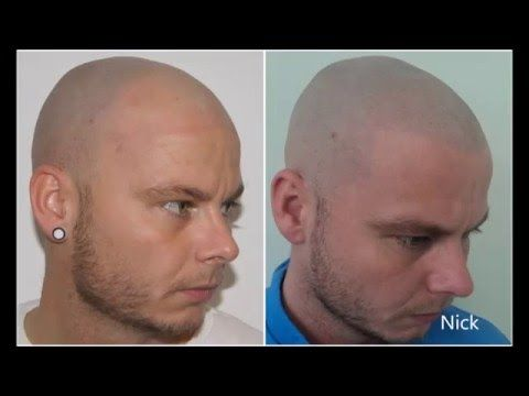 Micro Scalp Pigmentation Results & Patient Experiences with Vinci Hair Clinic - YouTube