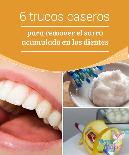 6 trucos caseros para remover el sarro acumulado en los dientes  El sarro es aquella placa bacteriana de color amarillento que se va quedando adherida al esmalte dental, en especial en los alrededores de las encías.