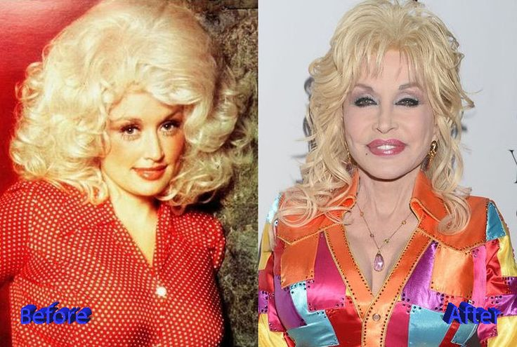 Dolly Parton Before and After Surgery Transformation