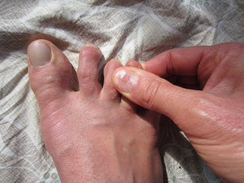 *** NATURAL CURE for Hammer Toes, Claw or Mallet Toes *** - YouTube