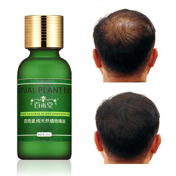 Natural, extrato da planta de cabelo rápida essência crescimento líquido óleo essencial de ginseng ginger herbal pura