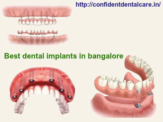 Missing tooth? Consult Best Dental implants clinic for your all your dental problems...https://goo.gl/SAJ4Po  #Dentalclinic #Missingtooth #Dentalimplants #DentalclinicinBangalore