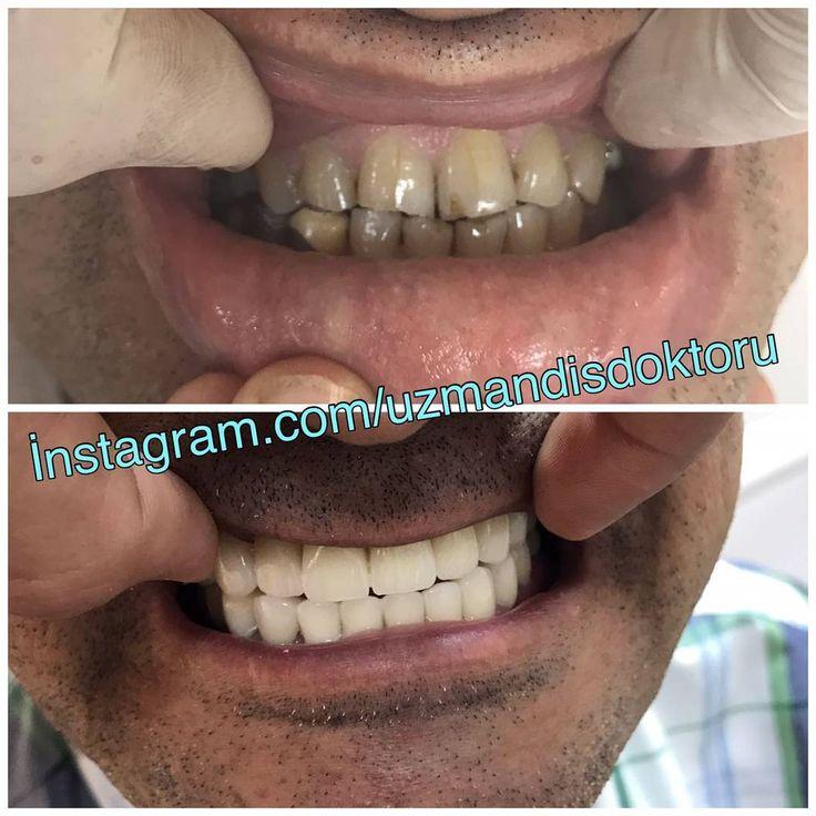 2 ile 4 gün arasında zirkonyum diş kaplama ile yapılan düzgün estetik ömürlük en az 20 yıl garantili dişlere sahip olmak istermisiniz. İstanbul dışından gelecek hastalar için anlaşmalı otelimiz mevcuttur.  Randevu;;, :��☎ Şişli: 0212 211 11 53 Whatsapp tel: 0532 627 40 83  #dişçi #dişdoktoru #mobilya #besiktas #turkiye #bileklik #isimlik #botoks #dovme #bayrampasa #gaziosmanpasa #bakirkoy #avcilar #buyukcekmece #gecelik #gelinlik #tesettür #mavi #bahçeşehir #komik #berlin #kuafor #çeyiz…