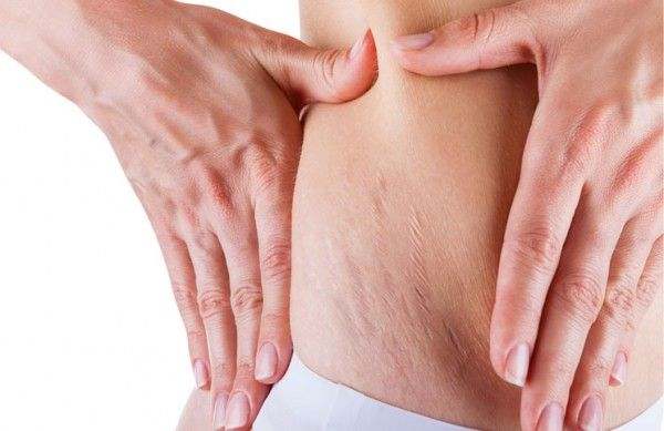 DIY Homemade Stretch Mark Scrub - Get Rid of Cellulite and Stretch Marks in 1 Month