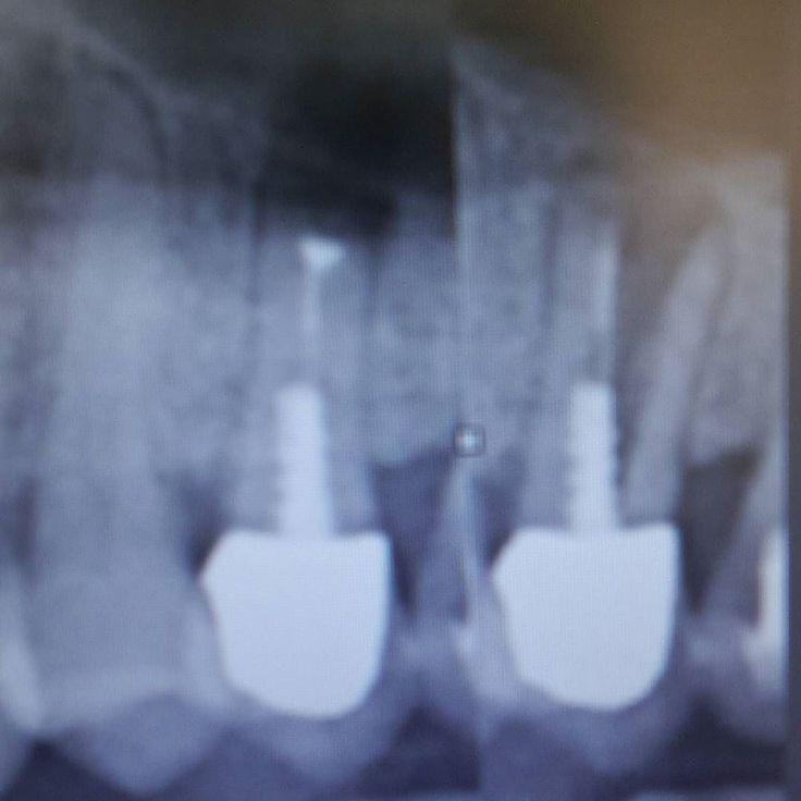 """Wurzelresezierter Zahn 25 mit Stift der sich innerhalb einiger Monate """"geteilt"""" hat. Solche Zähne haben natürlich gerne mal Längsfrakturen aber dass die Wurzeln sich im Kiefer derart auseinander bewegen sieht man nicht alle Tage. #mkg #kieferchirurgie #oralchirurgie #zahnmedizin #maxillofacial #oralsurgery #dentistry #endodontia #wsr #rootcanal #zfa #zahnfee #zmf #dentalproblems #teeth #tooth #zähne #wurzel #fraktur #dentalhygiene by mkgmed Our General Dentistry Page…"""