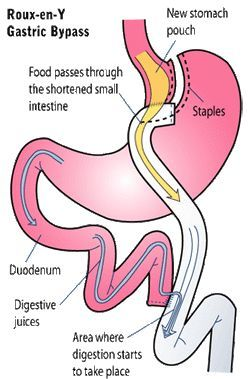 Information on Roux-en-Y gastric bypass and my personal reasons for having it.