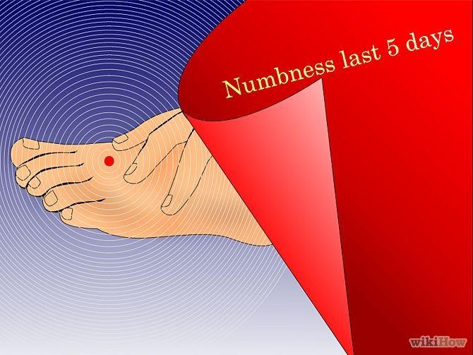 Cure Numbness in Your Feet & Toes Step 5.jpg