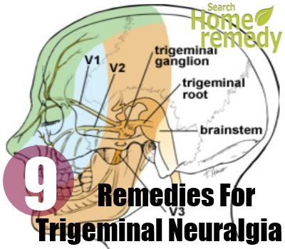 Trigeminal Neuralgia is a neuropathic disorder. Trigeminal nerve is the main nerve controlling the sensation in the face. It is the result of constant pressing of the blood vessel on the nerve near the brain stem. Changes in the blood vessels of the brain can result in blood vessels rubbing against the trigeminal nerve root. Trigeminal nerve consists of three branches – the ophthalmic nerve, the maxillary nerve, the mandibular nerve. It normally involves the middle branch and the lower…