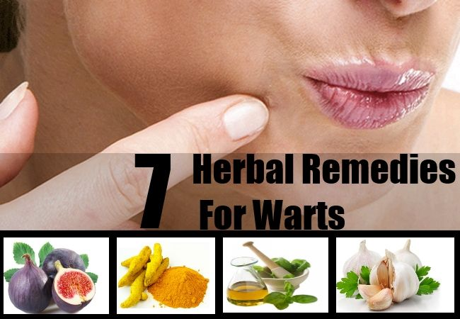 Cure for facial warts