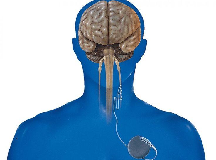 Τρόποι για να διεγείρετε το πνευμονογαστρικό νεύρο