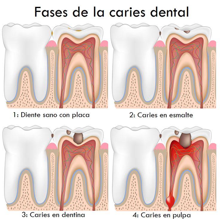 Etapas de la #caries dental