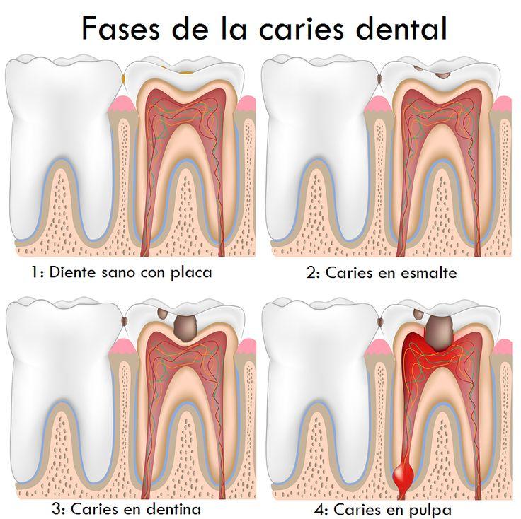 Etapas de la #caries dental