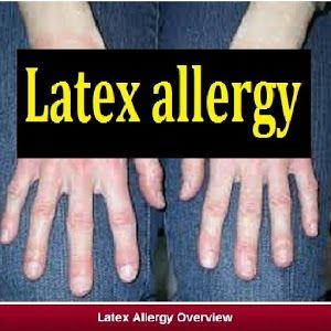 Kiwi Allergie Latex