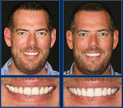 A 2 Visit Smile Makeover Is The Best Smile Solution- When we meet someone, there's nothing that puts us more at ease than a beautiful, bright smile. Never miss another opportunity to present yourself in your best light, with an amazing smile. #Smile #AustinCosmeticDentist #CosmeticDentist #Dentist #SmileMakeover #SedationDentistry #AustinSmileMakeOver #CosmeticDentistry #Austin #ATX #PorcelainVeneers #PorcelainCrowns #PorcelainBridges #BestCosmeticDentist