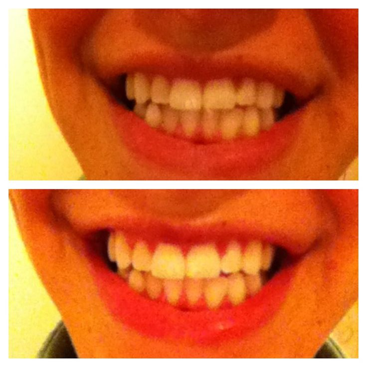 11 Best Real Before Amp After Images On Pinterest Teeth