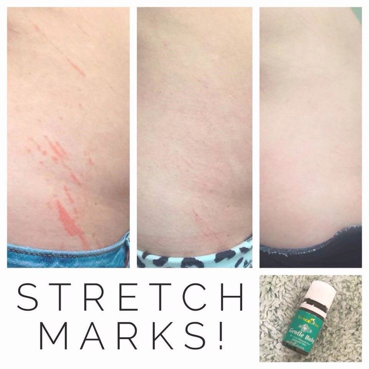 Gentle Baby for stretch marks. She added 1 drop of Gentle Baby to a mix of almond and coconut oil, cocoa butter and vitamin e. 2nd pic is 24 hours later, 3rd pic is 4 days later applying day and night. Gone!