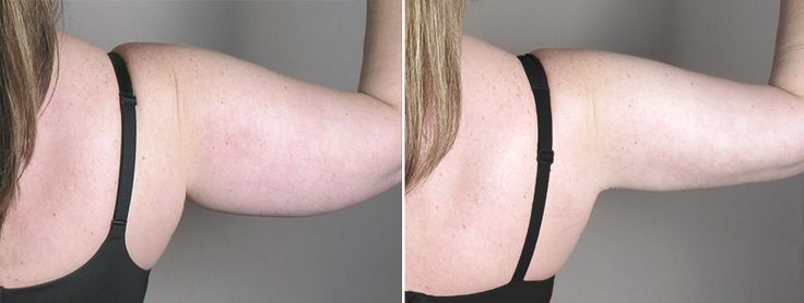 Arm Liposuction Cost