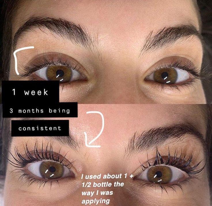 Eyelash serum in 2020 eyelash serum get long eyelashes