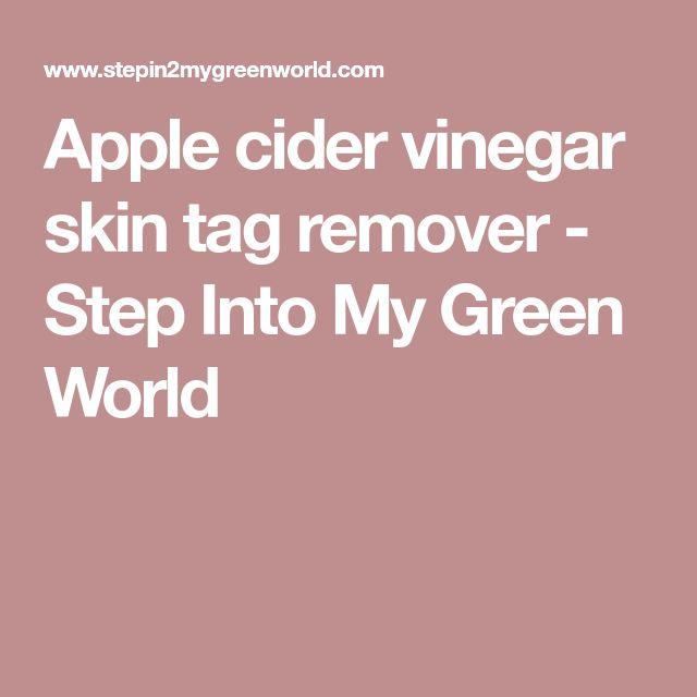 Apple cider vinegar skin tag remover - Step Into My Green World