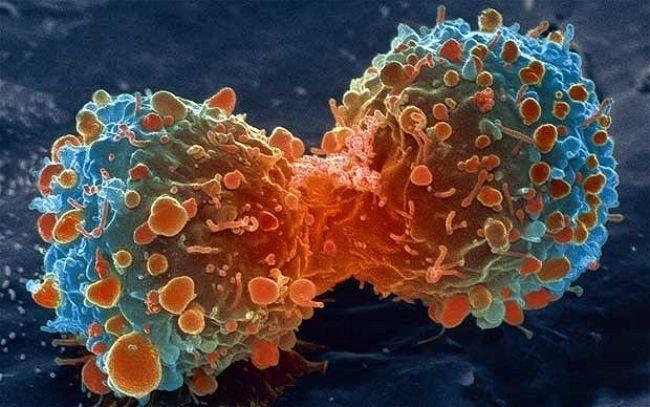 Por azar se descubre una proteína que podría combatir todos los cánceres  http://www.xatakaciencia.com/p/22902