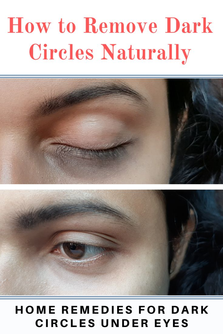 How to remove dark circles naturally: Home remedies for ...