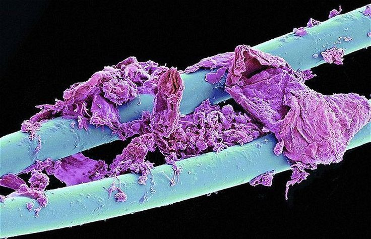 A CLOSER LOOK    We so rarely look at everyday objects that, when they are pictured under an electron microscope, they take on a new - and sometimes disgusting new life.