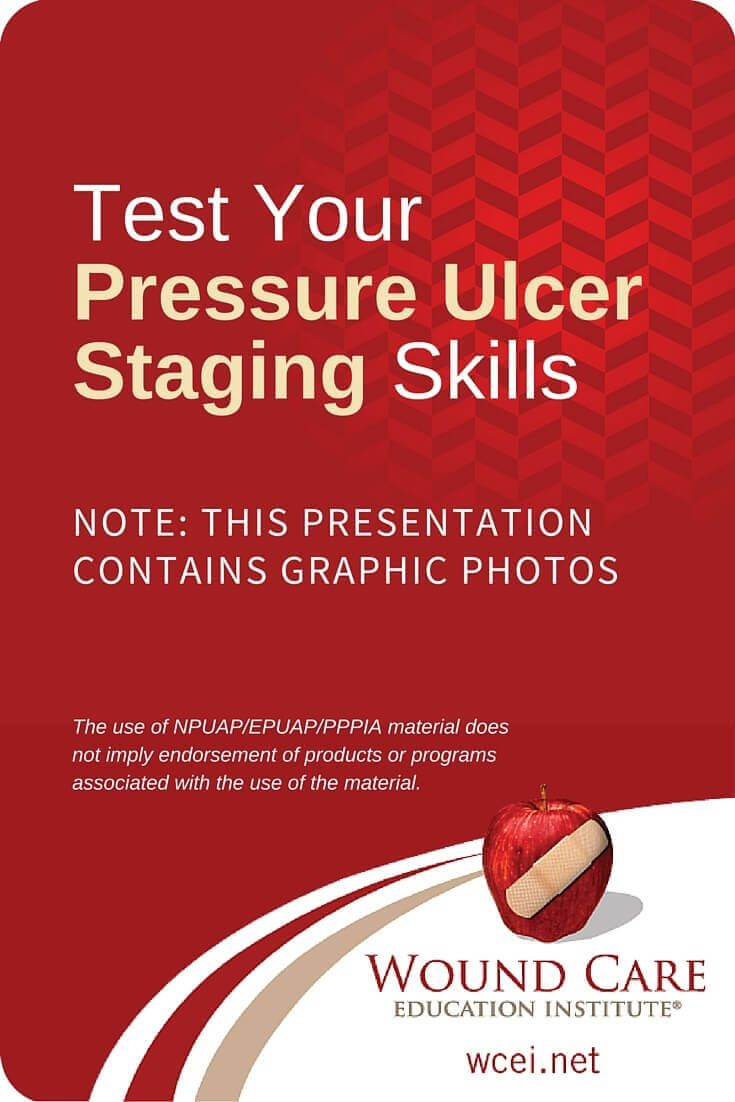What Stage Is It? Test Your Pressure Ulcer Staging Skills - How well do you know your guidelines for staging pressure ulcers? View the slideshow and test yourself!