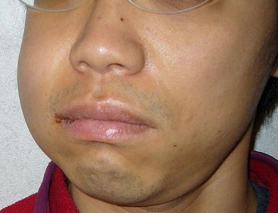 tooth nerve pain  http://www.holistic-healing-information.com/tooth-nerve-pain.html