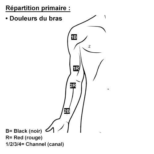 TENS en cas de douleurs du bras