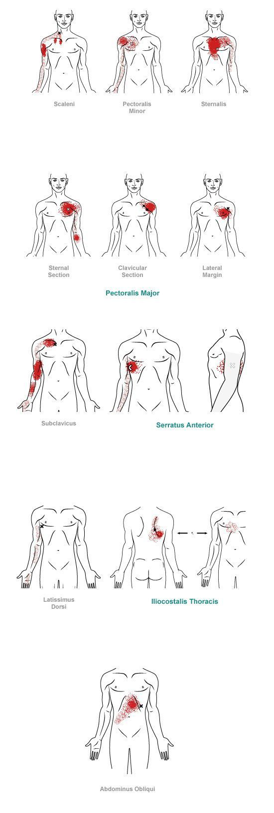348 Best Myofascial Pain Syndrome Images On Pinterest