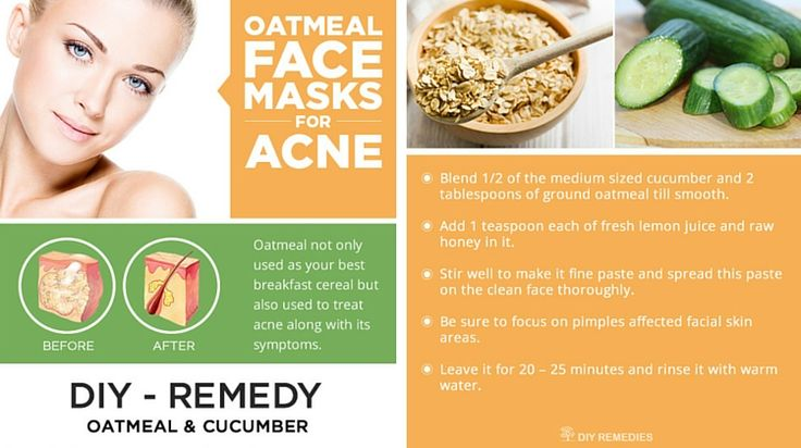 Oatmeal not only used as your best breakfast cereal but also used to treat acne along with its symptoms. Here are some of the oatmeal properties that make you know how it prevents acne