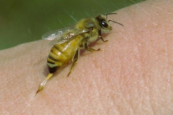 Ezt kell tenned abban az esetben, ha megcsípett egy méh... Mindenkinek tudnia kell erről!