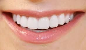 Image result for veneer teeth