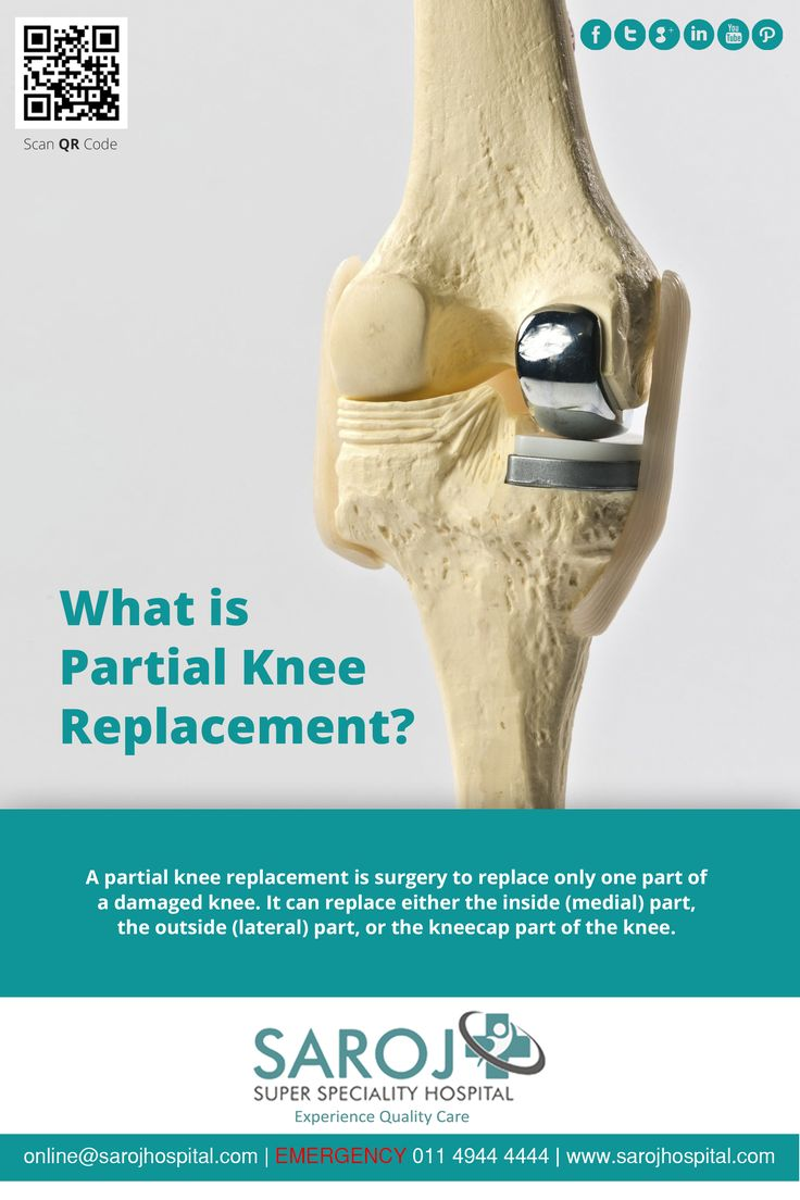 All knee replacements may necessarily not be total knee replacements. A few are partial also. Read on to know what a partial knee replacement surgery is. Share your information here - http://bit.ly/293Ztfg ‪#‎Surgery‬ ‪#‎KneeReplacement‬