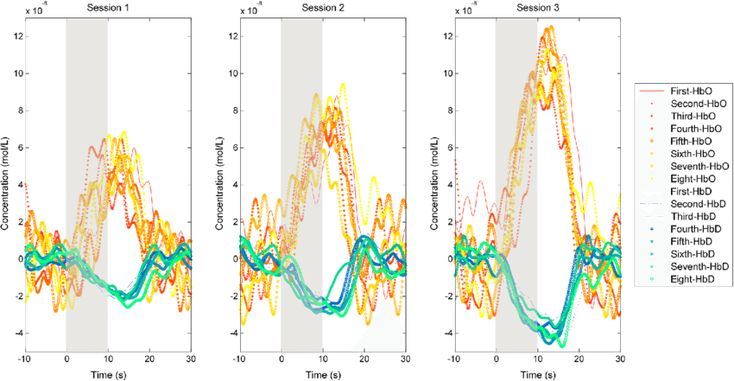 (8) Stimulus and optode placement effects on functional near-infrared spectroscopy of visual cortex