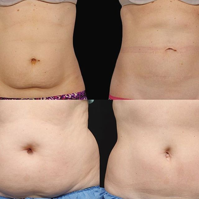 Check out these before and after tummies!! CoolSculpting gives long term results that you'll love! We are offering $500 off CoolSculpting packages!! Give us a call to find out more   #coolsculpting #plasticsurgey #slc #utah #medicalspa #Revivology #look #good #you #feel #amazing #medspa #photofacial #microneedling #dermaplaning #microdermabrasion #massage #spa #facials #fillers #laserhairremoval #veins #chemicalpeel #botox #miradry #Revīvology