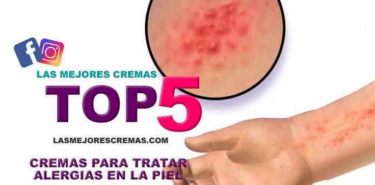 ¿Estás buscando nombres de cremas para alergias en la piel?. Llegaste al artículo adecuado!. Te presentaremos una lista con las cremas o pomadas más conocidas para tratar reacciones alérgicas en la piel