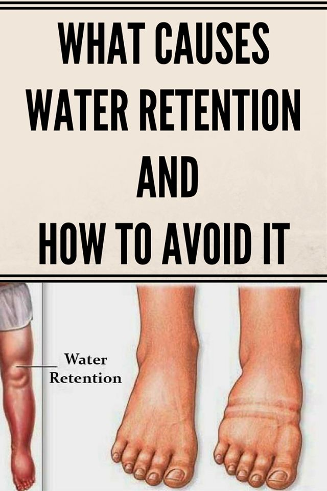 WHAT CAUSES WATER RETENTION AND HOW TO AVOID IT,